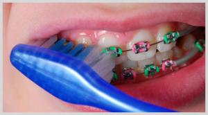 Ortodontics for Children