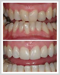 Teeth Straightening Before & After
